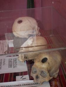 Cranial Deformation